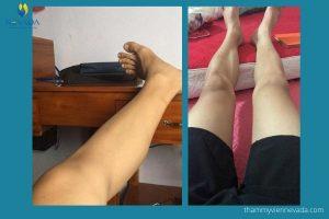 Tướng đàn ông ít lông chân thể hiện điều gì? Chân ít lông có sao không?