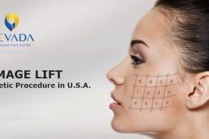Cấy căng bóng da Thermage -Trẻ hoá da An toàn – Không đau rát – Không biến chứng