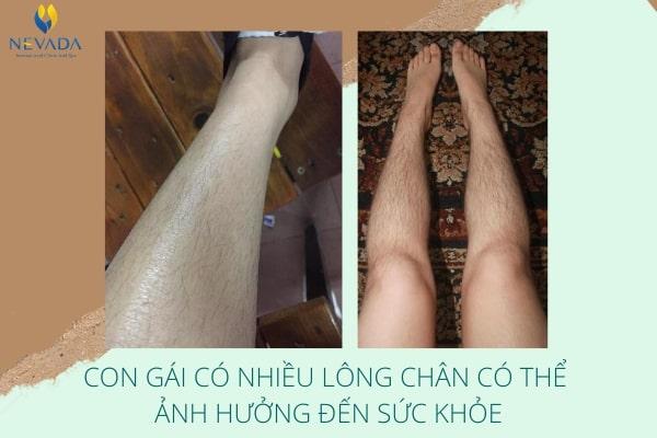 Tại sao lông chân mọc nhiều ở nữ, Tại sao con gái lại có nhiều lông chân, Con gái có lông chân nhiều thì sao