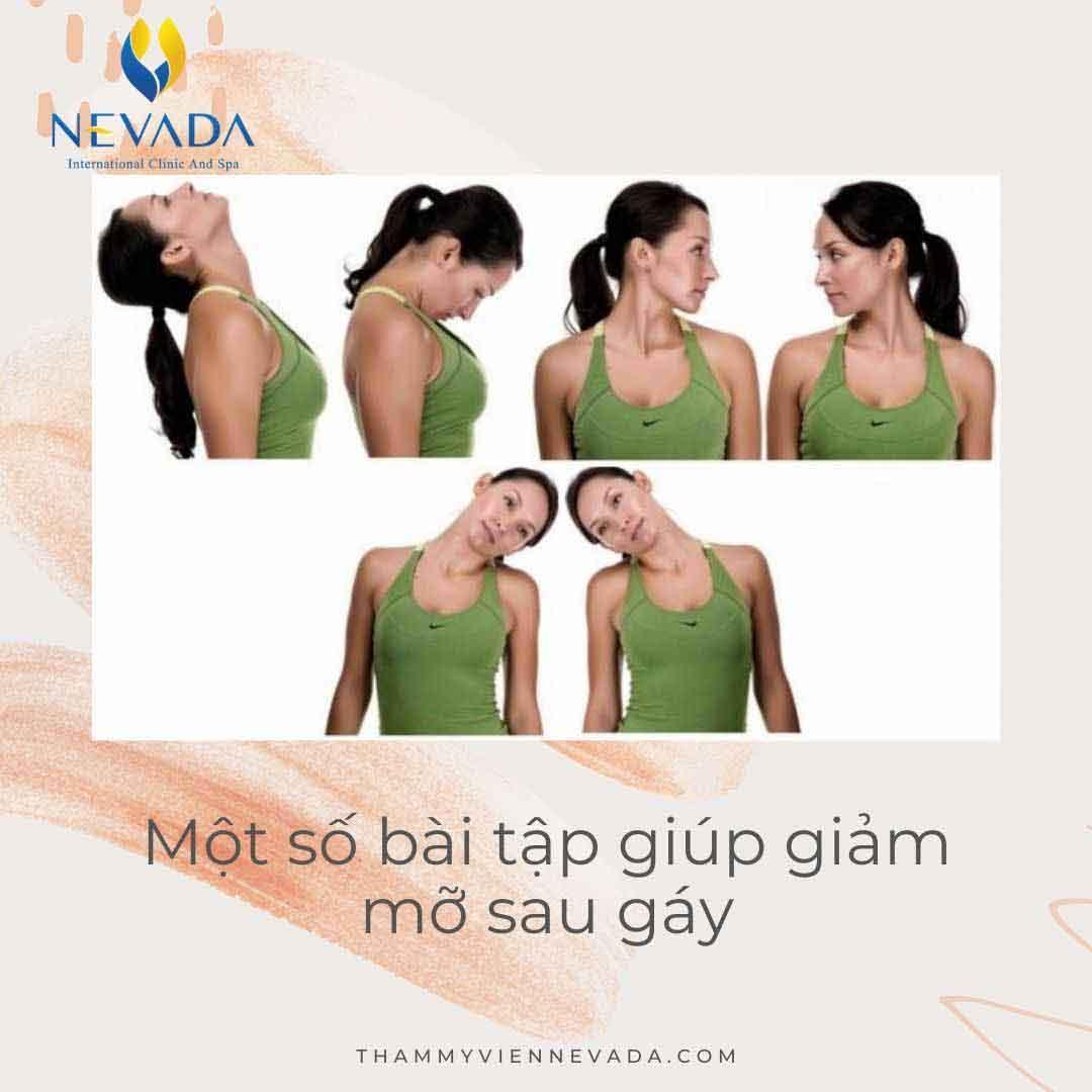 mỡ sau gáy có nguy hiểm không, cách giảm mỡ sau gáy, giảm mỡ sau gáy, bài tập giảm mỡ sau gáy