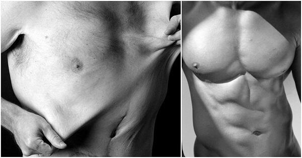 làm săn chắc da sau giảm cân, cách làm săn chắc da sau khi giảm cân, cách làm săn da sau khi giảm cân, cách làm da săn chắc sau giảm cân