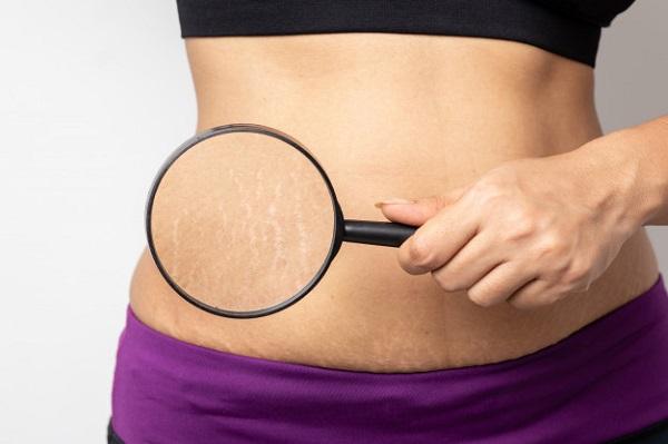 giảm cân có bị rạn da không, giảm cân nhanh bị rạn da, giảm cân có hết rạn da, rạn da khi giảm cân, rạn da sau khi giảm cân, rạn da sau giảm cân, Cách trị rạn da cho người béo, Bị rạn da ở đầu gối, Hiện tượng nứt da, Bị rạn da nặng, Nguyên nhân rạn da, Rạn da có mấy loại