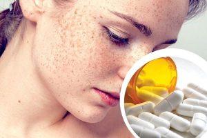 Lời cảnh tỉnh từ chuyên gia: Uống thuốc giảm cân bị sạm da và nhiều hơn thế