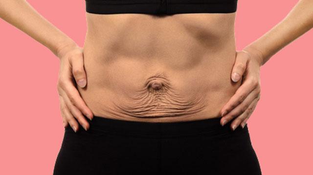 giảm cân không bị nhăn da, cách giảm cân mà không bị nhăn da, giảm cân bị nhăn da, cách giảm cân không bị nhăn da