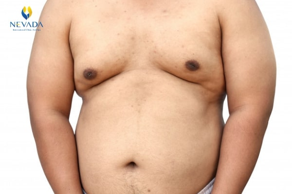 cách giảm mỡ ngực nam, cách giảm mỡ ngực nhanh nhất, cách giảm mỡ ngực ở nữ, cách giảm mỡ ngực cho nữ, cách giảm mỡ ngực dưới, cách giảm béo ngực, cách tập giảm mỡ ngực, cách làm giảm mỡ ngực, làm thế nào để giảm mỡ ngực, cách giảm mỡ ngực cho nam, cách giảm mỡ ở ngực cho nữ, cách để giảm mỡ ngực, làm cách nào để giảm mỡ ngực, cách giảm mỡ ngực nam giới, cách giảm vòng ngực, cách làm giảm mỡ ngực cho nam, làm thế nào để giảm vòng ngực, cách làm giảm mỡ ngực ở nữ, cách giảm mỡ ngực ở nam, cách giảm mỡ ở ngực cho nam, cách giảm mỡ phần ngực, cách giảm mỡ ngực cho nam tại nhà, giảm mỡ ngực ở nữ, cách giảm mỡ vùng ngực cho nam, cách giảm mỡ vòng 1